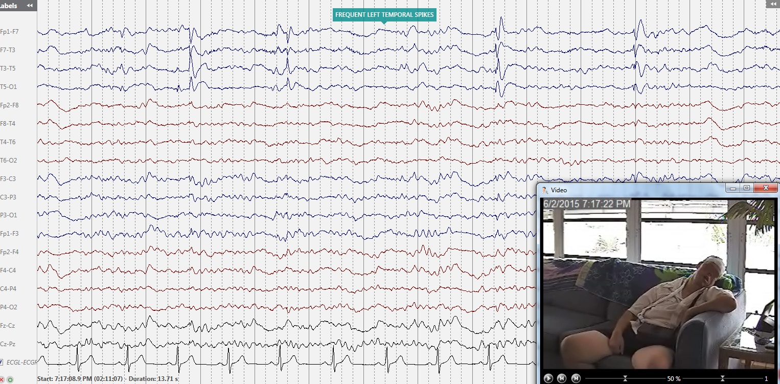 In-Home_Video_EEG