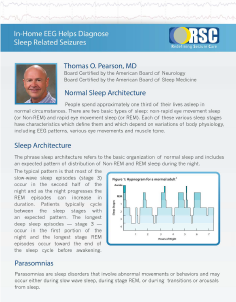 In-Home_EEG_Helps_Diagnose_Sleep_Related_Disorders_Pearson.png